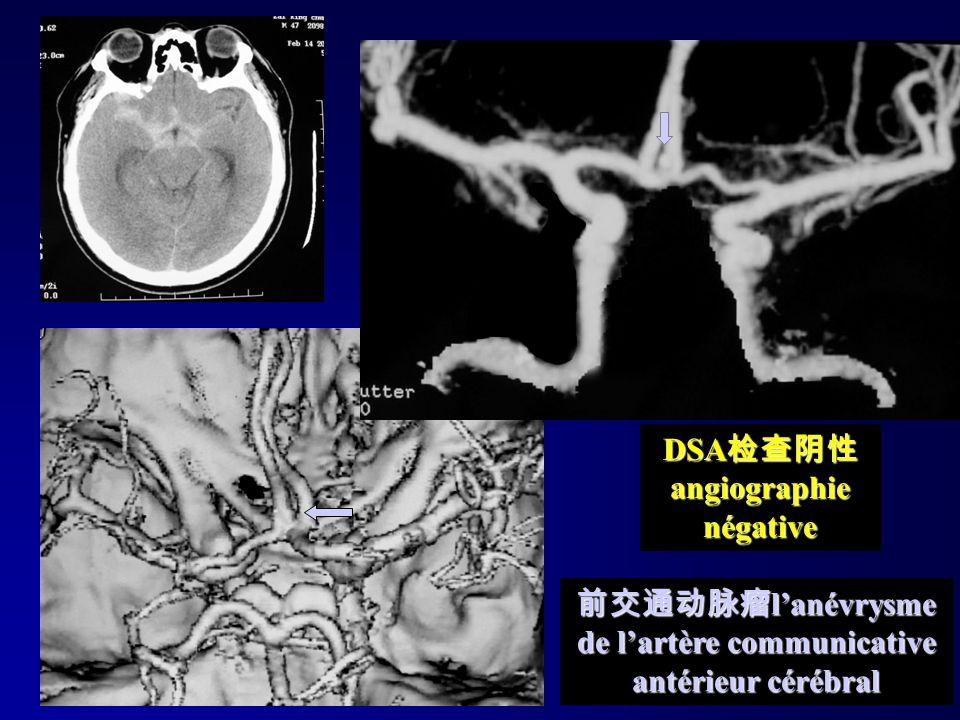 DSA检查阴性angiographie négative