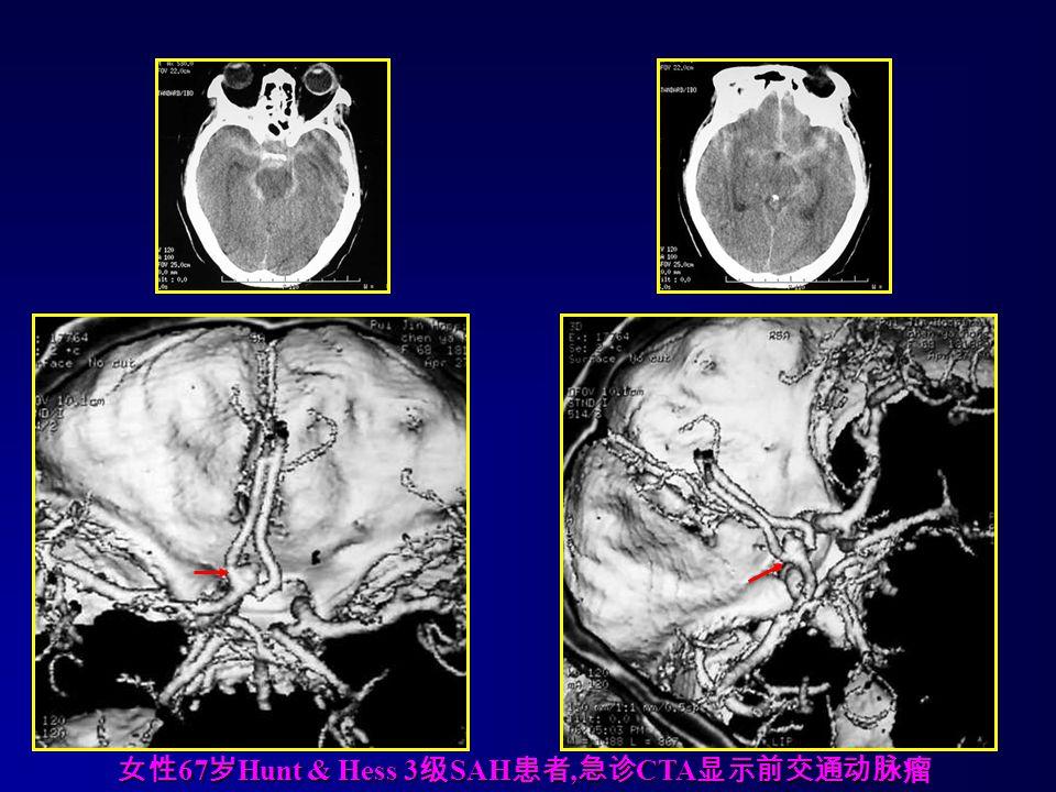 女性67岁Hunt & Hess 3级SAH患者,急诊CTA显示前交通动脉瘤