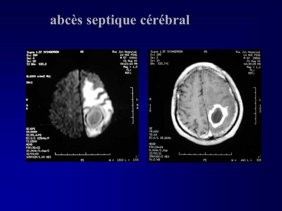 abcès septique cérébral
