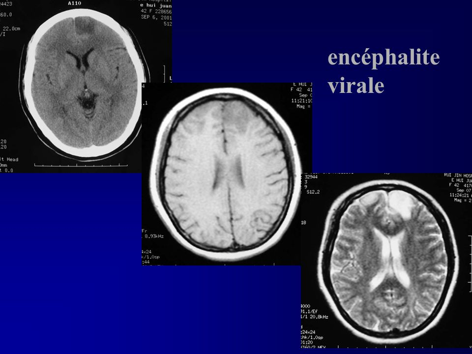 encéphalite virale