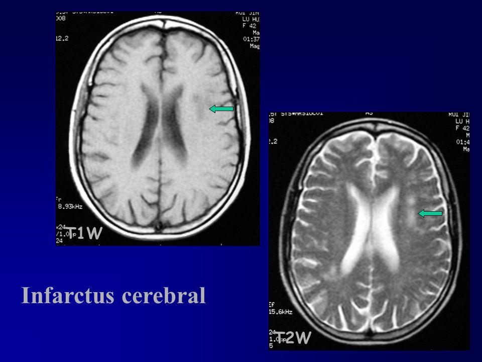 T1W Infarctus cerebral T2W