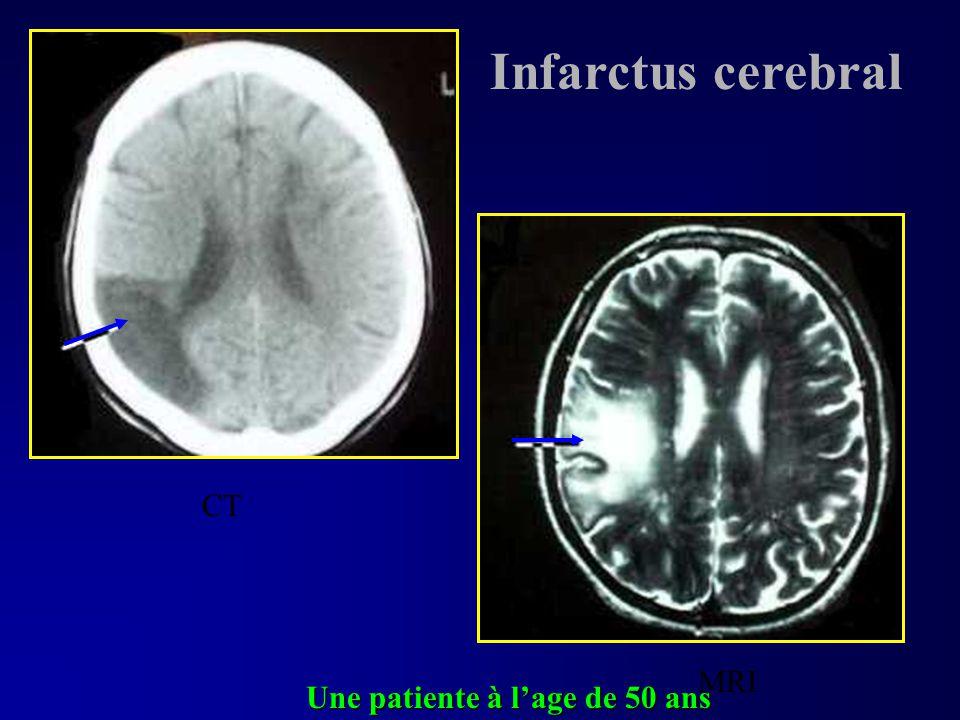 Infarctus cerebral CT MRI Une patiente à l'age de 50 ans