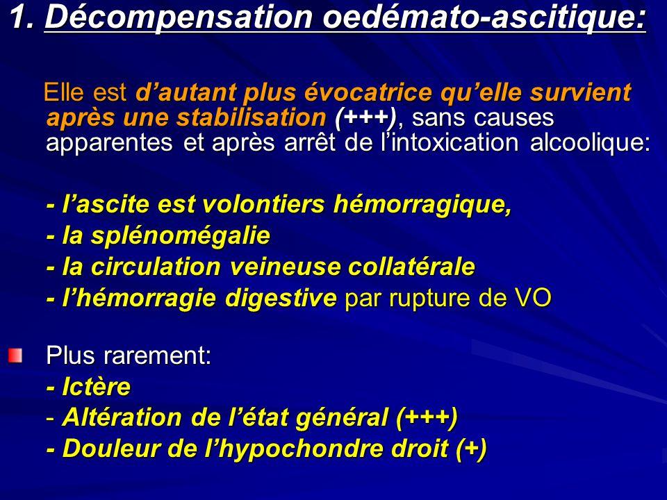 1. Décompensation oedémato-ascitique: