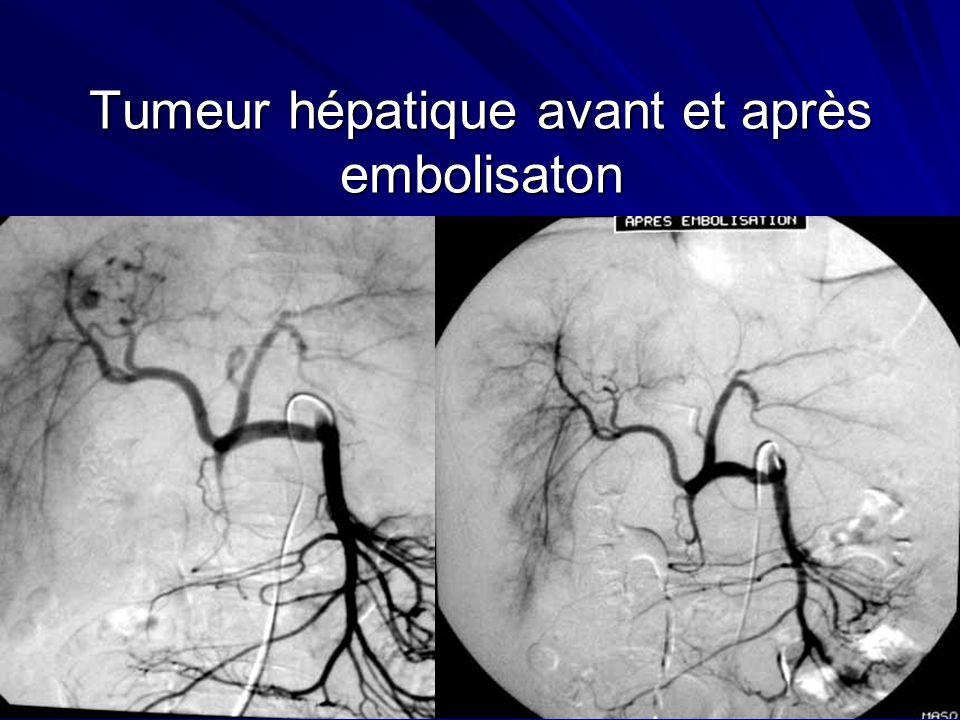 Tumeur hépatique avant et après embolisaton