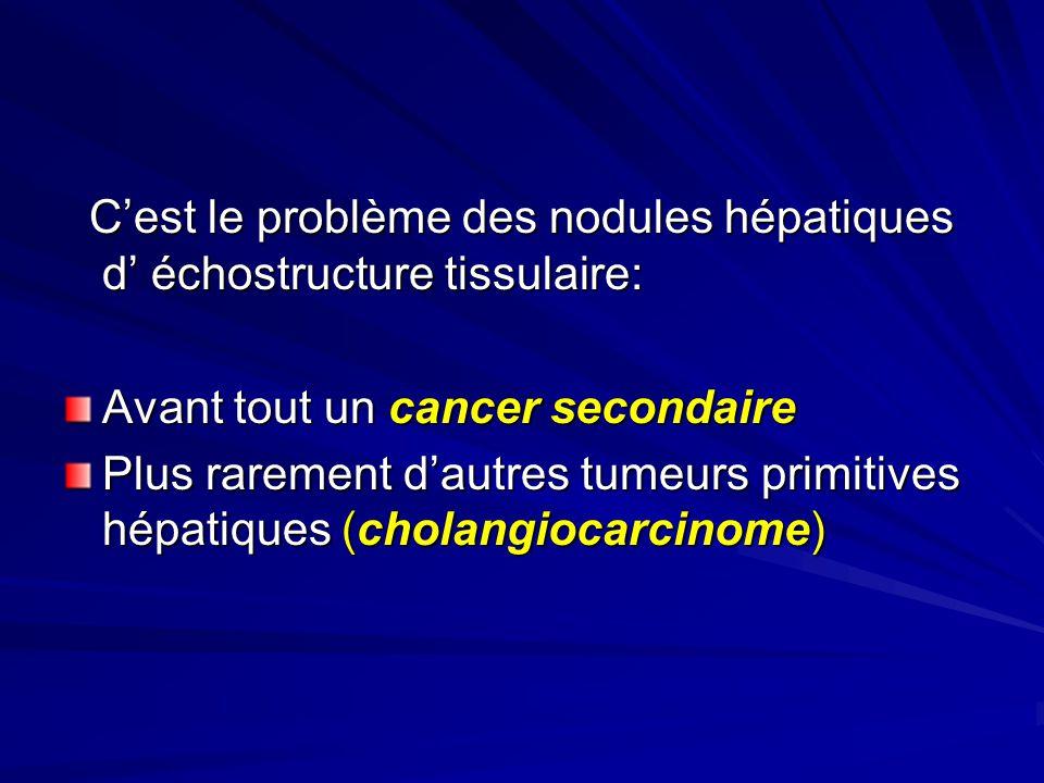 C'est le problème des nodules hépatiques d' échostructure tissulaire: