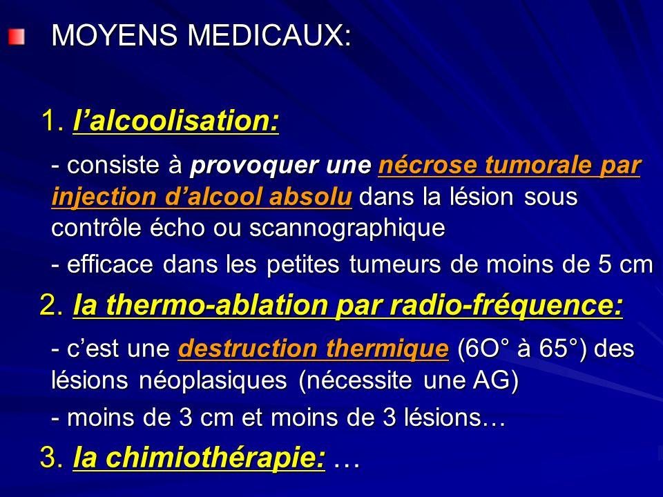 2. la thermo-ablation par radio-fréquence: