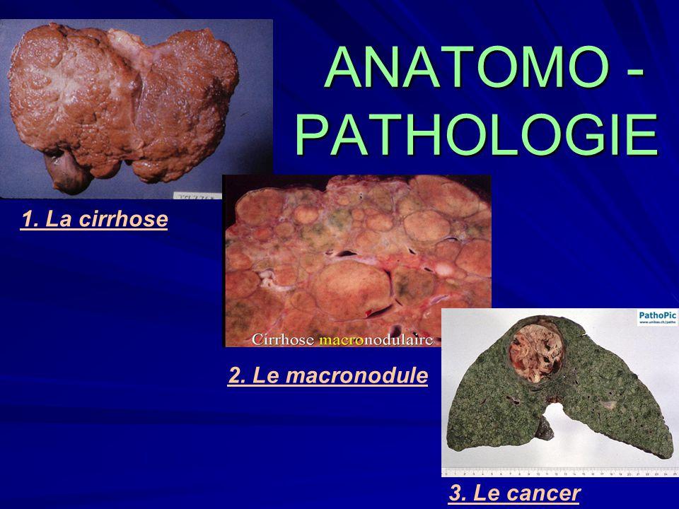 ANATOMO - PATHOLOGIE 1. La cirrhose 2. Le macronodule 3. Le cancer