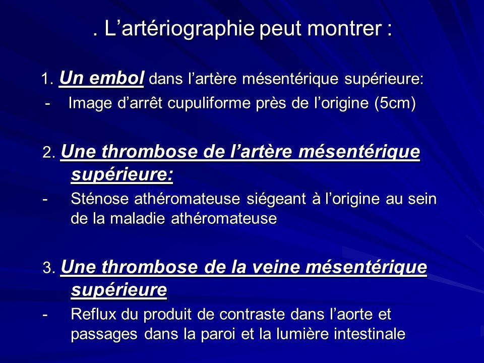 . L'artériographie peut montrer :