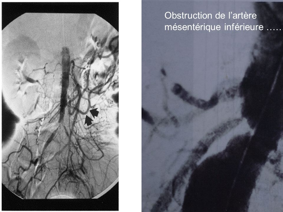 Obstruction de l'artère mésentérique inférieure ……