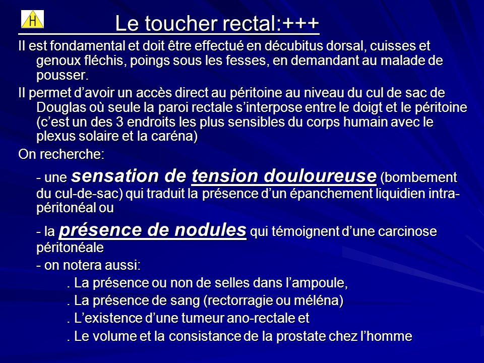 Le toucher rectal:+++