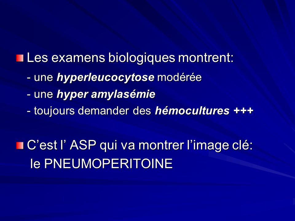 Les examens biologiques montrent: - une hyperleucocytose modérée