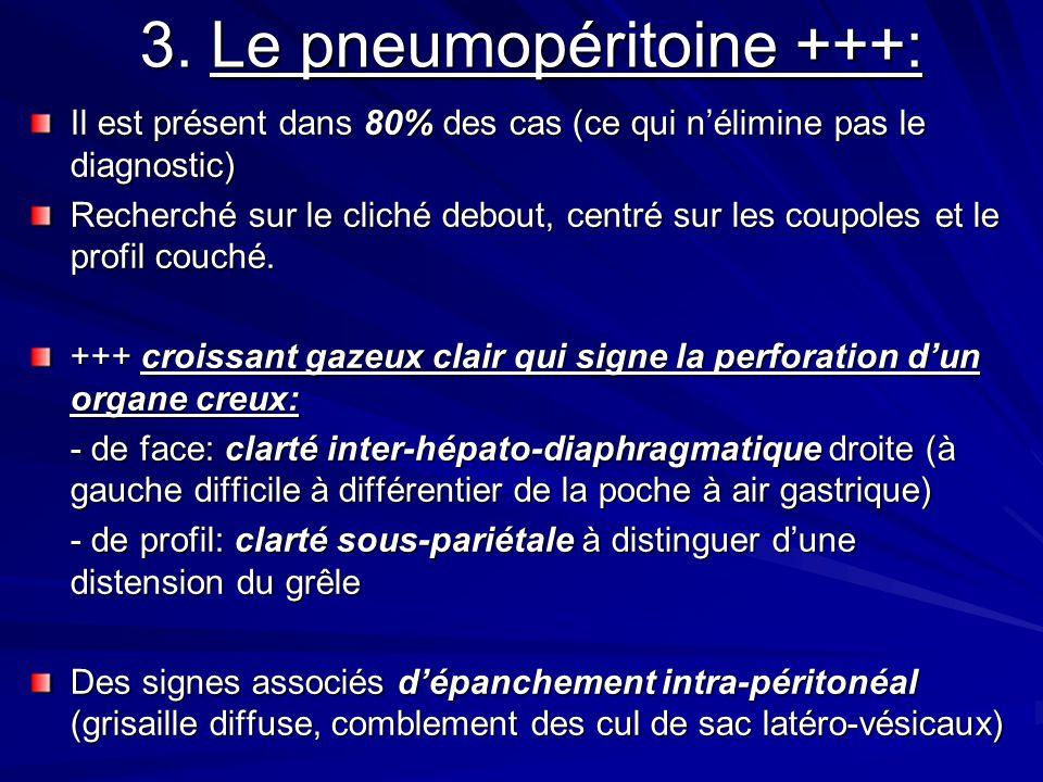 3. Le pneumopéritoine +++: