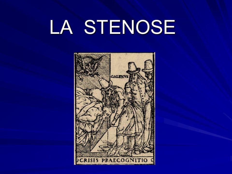 LA STENOSE