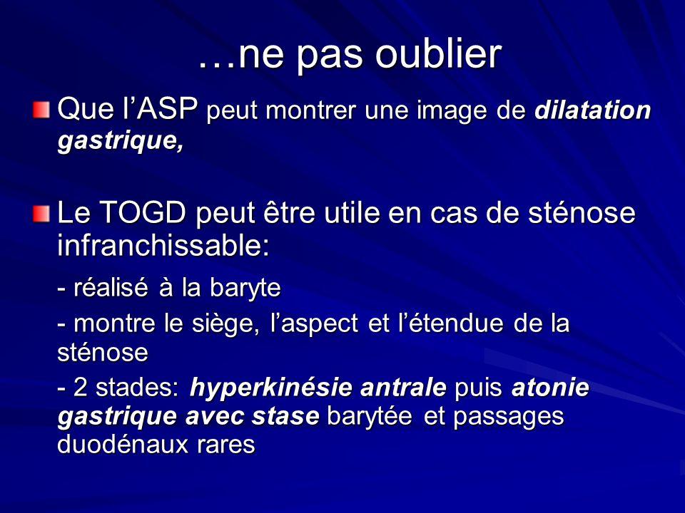…ne pas oublier Que l'ASP peut montrer une image de dilatation gastrique, Le TOGD peut être utile en cas de sténose infranchissable: