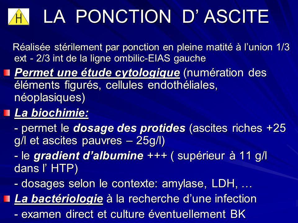 LA PONCTION D' ASCITE Réalisée stérilement par ponction en pleine matité à l'union 1/3 ext - 2/3 int de la ligne ombilic-EIAS gauche.