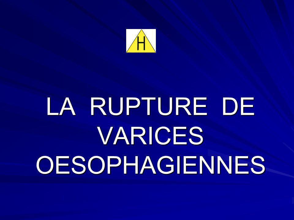 LA RUPTURE DE VARICES OESOPHAGIENNES