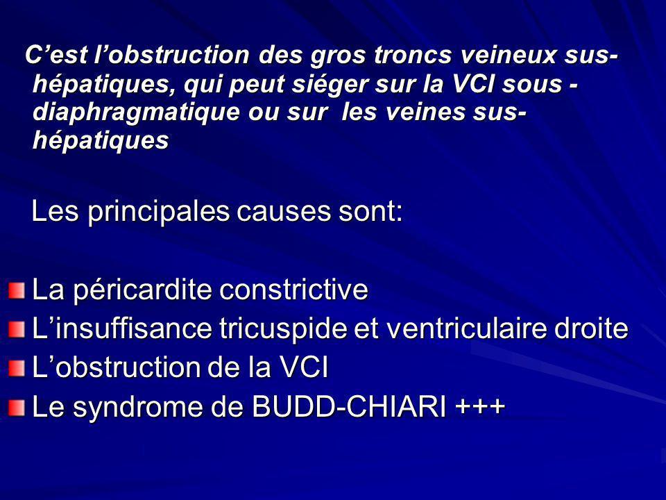C'est l'obstruction des gros troncs veineux sus-hépatiques, qui peut siéger sur la VCI sous -diaphragmatique ou sur les veines sus-hépatiques