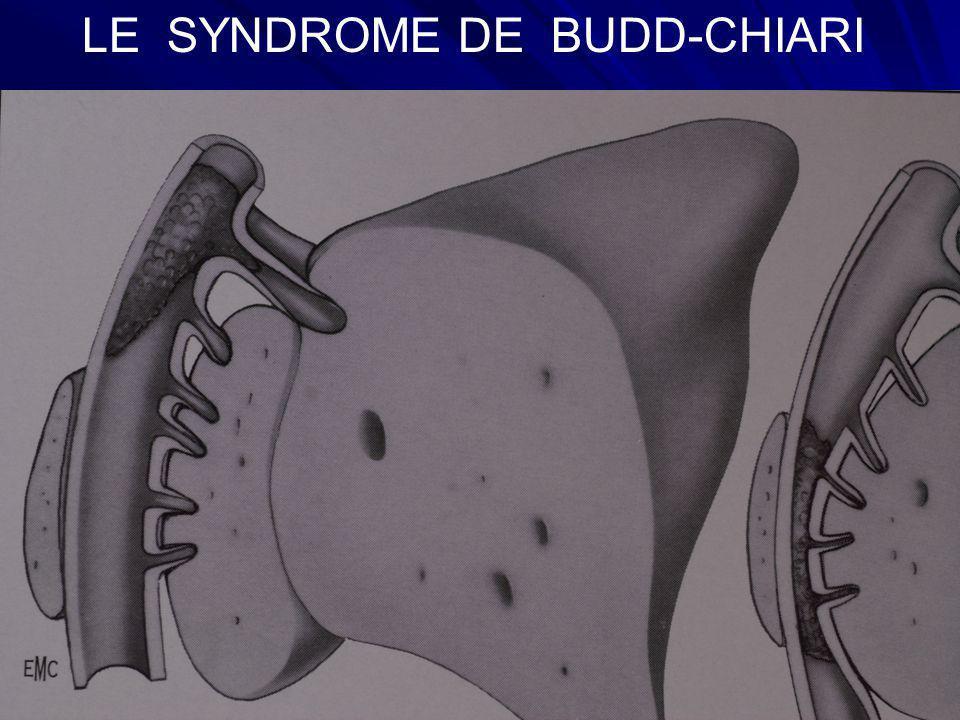LE SYNDROME DE BUDD-CHIARI