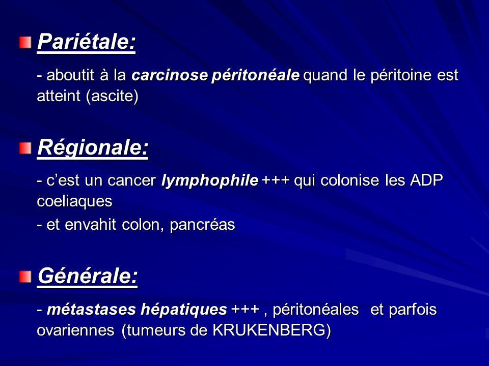 - c'est un cancer lymphophile +++ qui colonise les ADP coeliaques