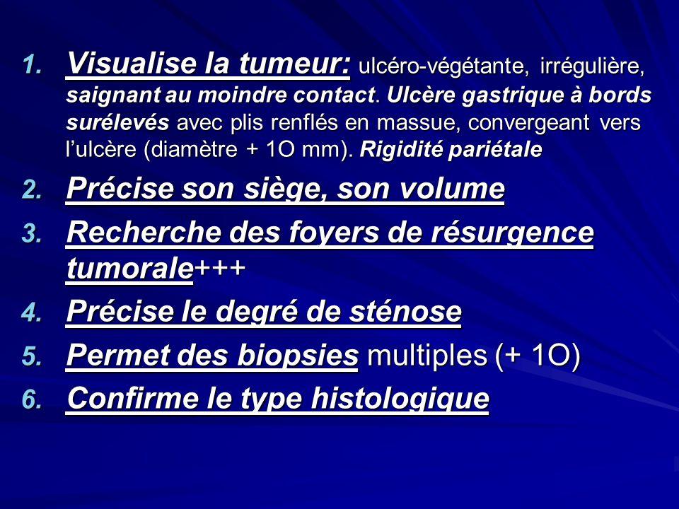Visualise la tumeur: ulcéro-végétante, irrégulière, saignant au moindre contact. Ulcère gastrique à bords surélevés avec plis renflés en massue, convergeant vers l'ulcère (diamètre + 1O mm). Rigidité pariétale