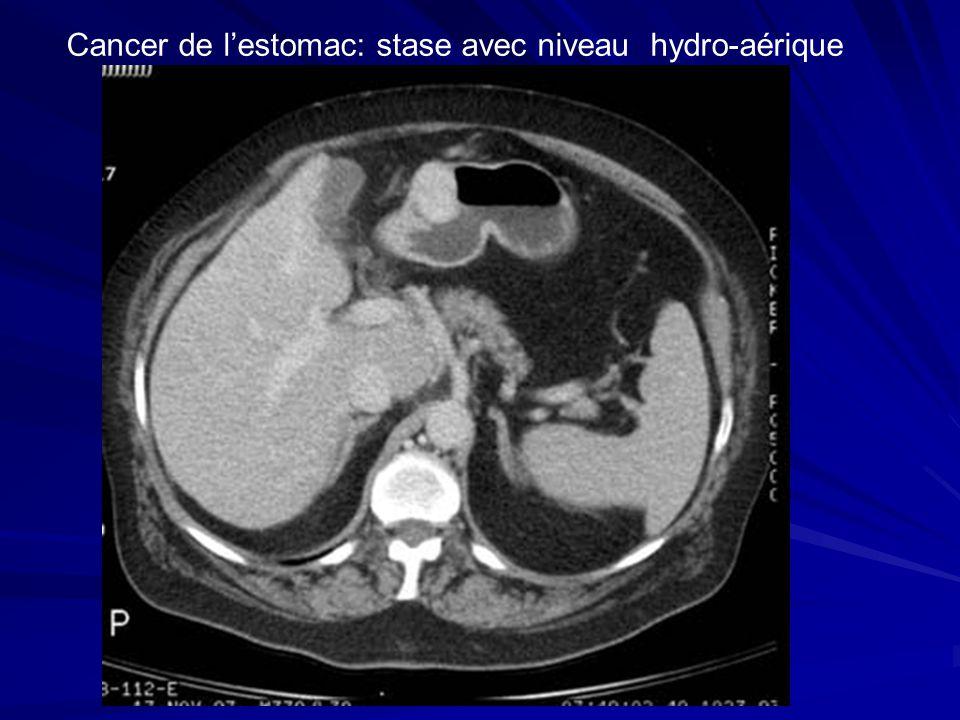 Cancer de l'estomac: stase avec niveau hydro-aérique