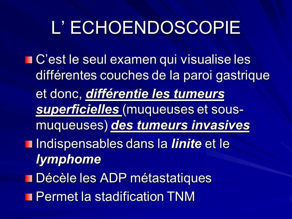 L' ECHOENDOSCOPIE C'est le seul examen qui visualise les différentes couches de la paroi gastrique.