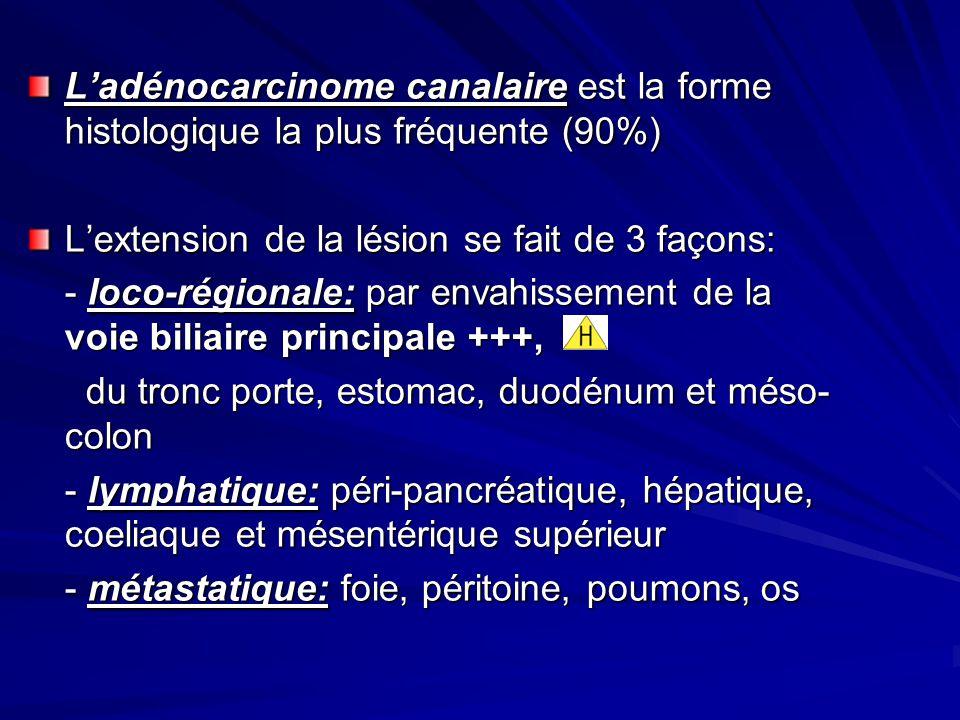 L'adénocarcinome canalaire est la forme histologique la plus fréquente (90%)