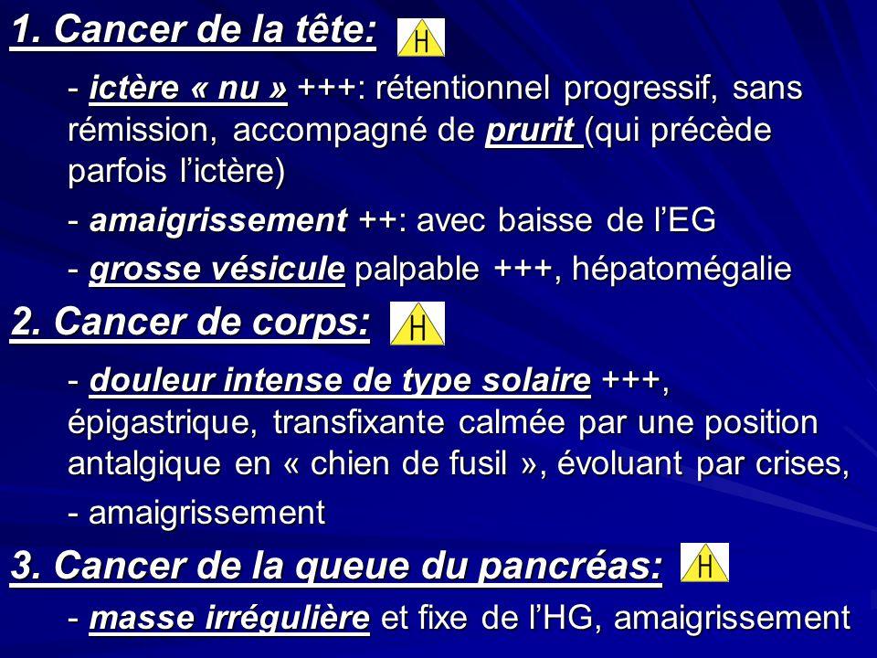 3. Cancer de la queue du pancréas: