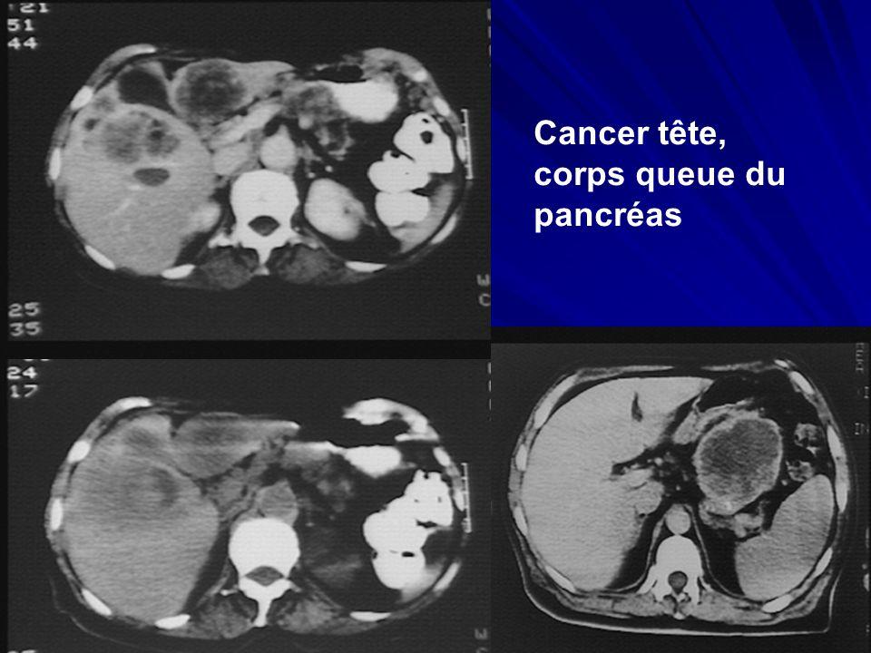 Cancer tête, corps queue du pancréas