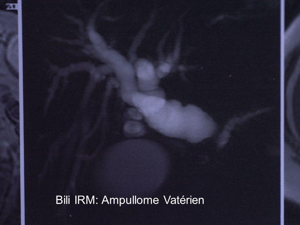 Bili IRM: Ampullome Vatérien