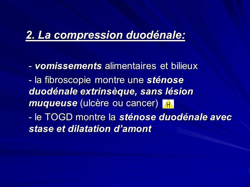 2. La compression duodénale:
