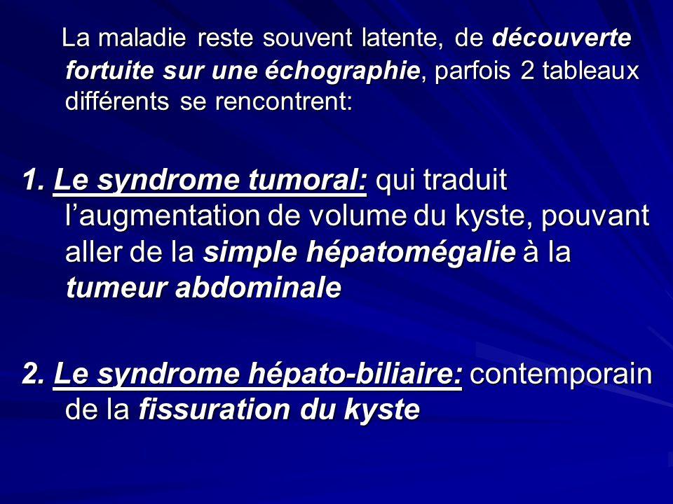 La maladie reste souvent latente, de découverte fortuite sur une échographie, parfois 2 tableaux différents se rencontrent: