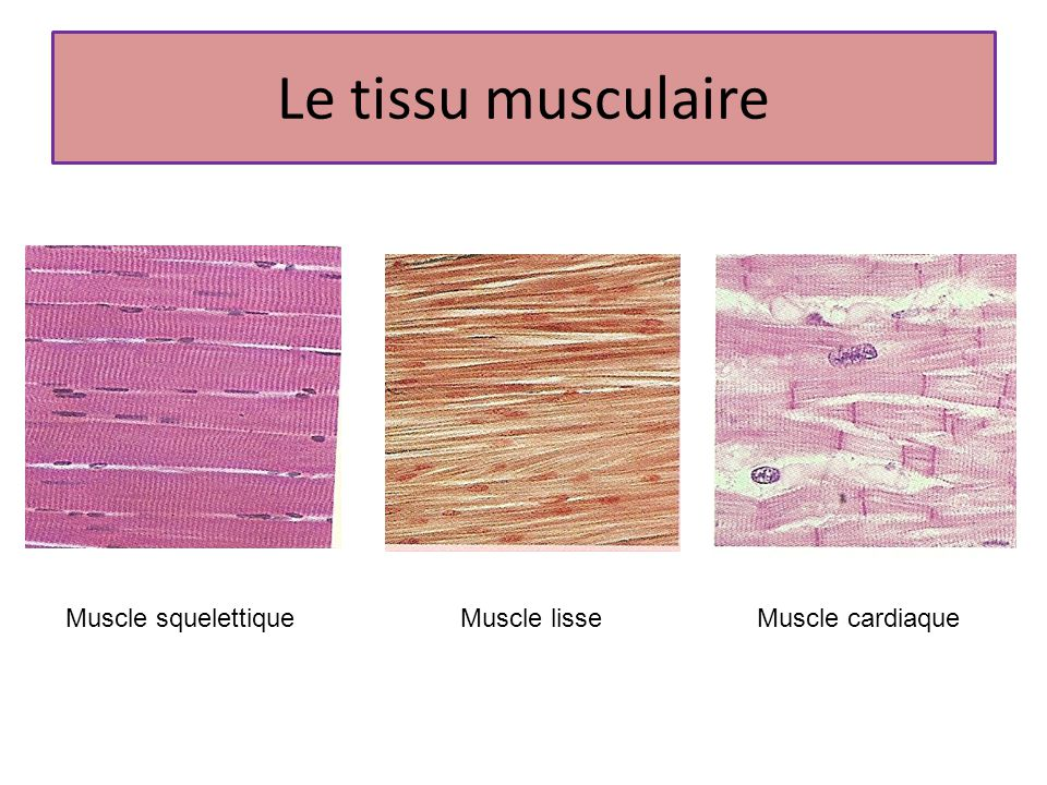 Le tissu musculaire Muscle squelettique Muscle lisse Muscle cardiaque