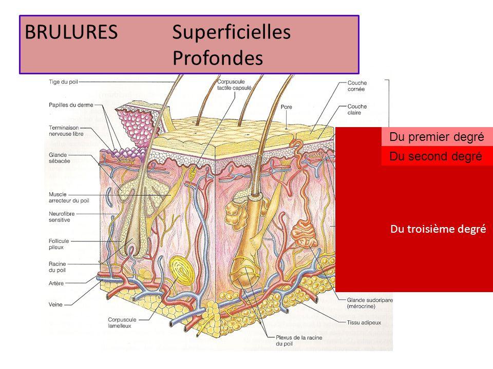 BRULURES Superficielles Profondes
