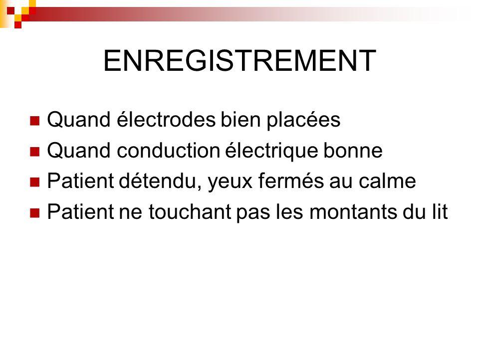 ENREGISTREMENT Quand électrodes bien placées
