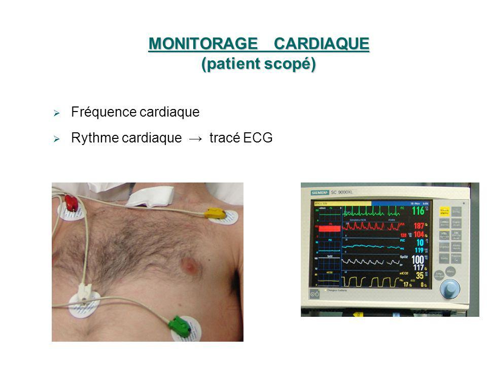 MONITORAGE CARDIAQUE (patient scopé)