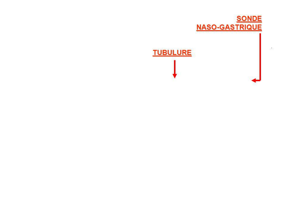SONDE NASO-GASTRIQUE TUBULURE
