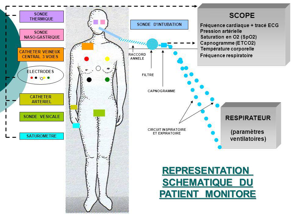 REPRESENTATION SCHEMATIQUE DU PATIENT MONITORE