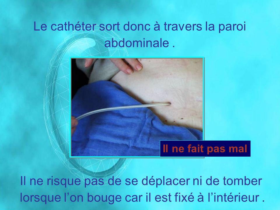 Le cathéter sort donc à travers la paroi abdominale .