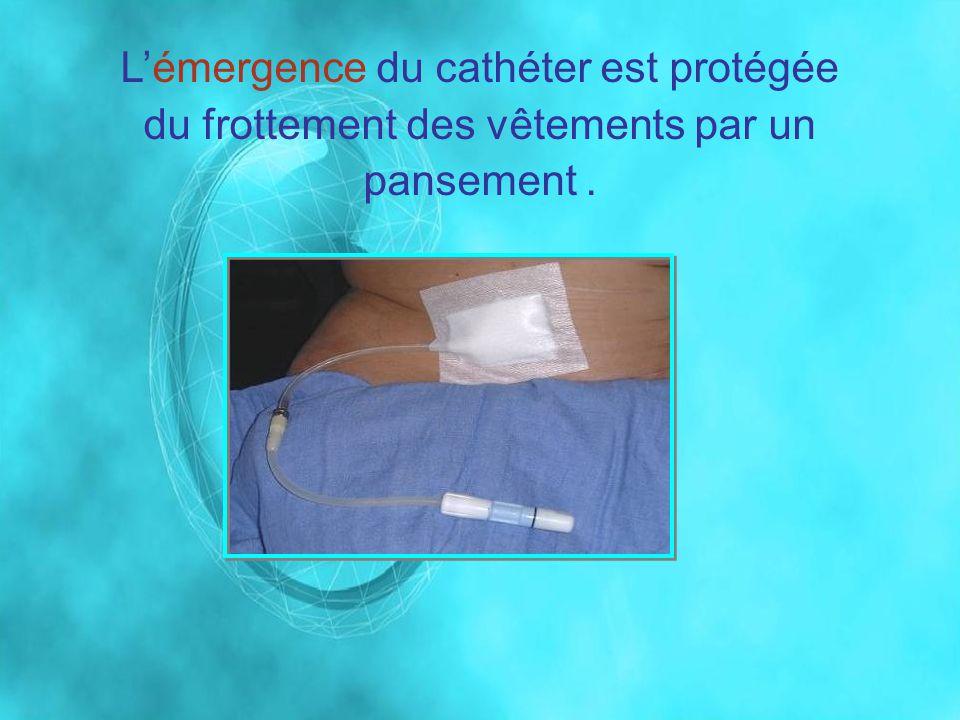 L'émergence du cathéter est protégée du frottement des vêtements par un pansement .
