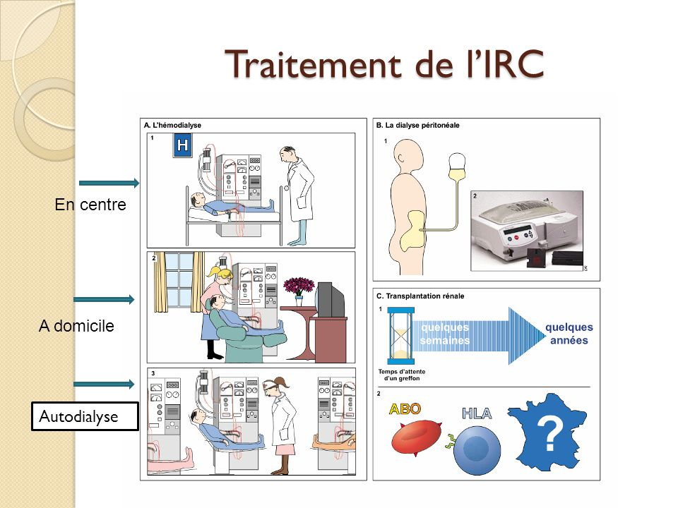 Traitement de l'IRC En centre A domicile Autodialyse