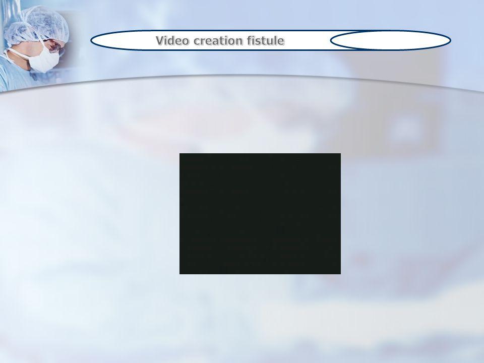Video creation fistule