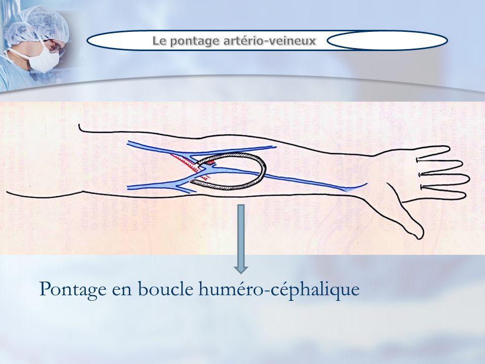 Pontage en boucle huméro-céphalique