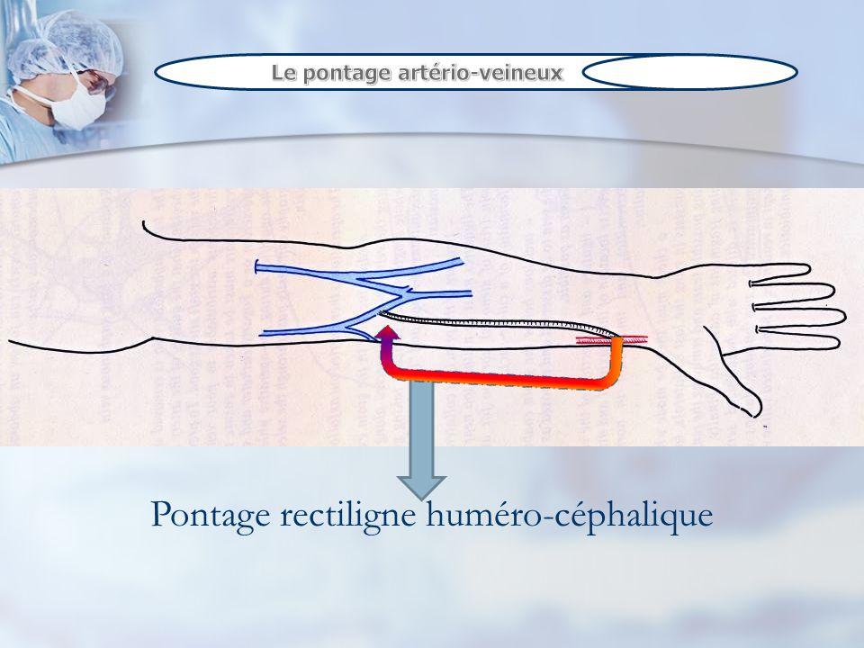 Pontage rectiligne huméro-céphalique