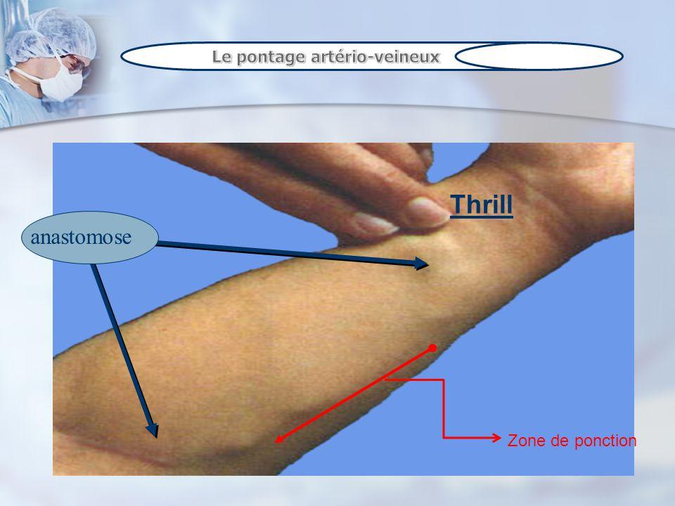 Le pontage artério-veineux