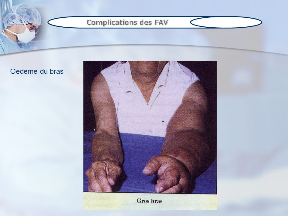 Complications des FAV Oedeme du bras