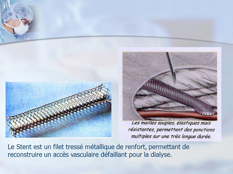 Le Stent est un filet tressé métallique de renfort, permettant de reconstruire un accès vasculaire défaillant pour la dialyse.