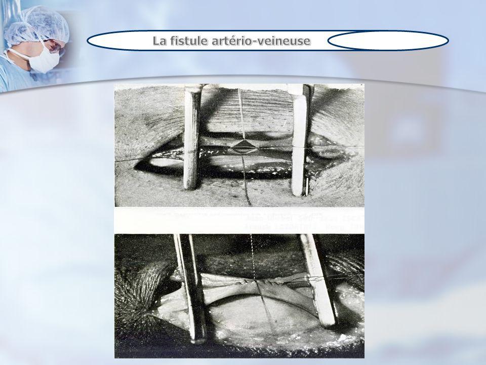 La fistule artério-veineuse