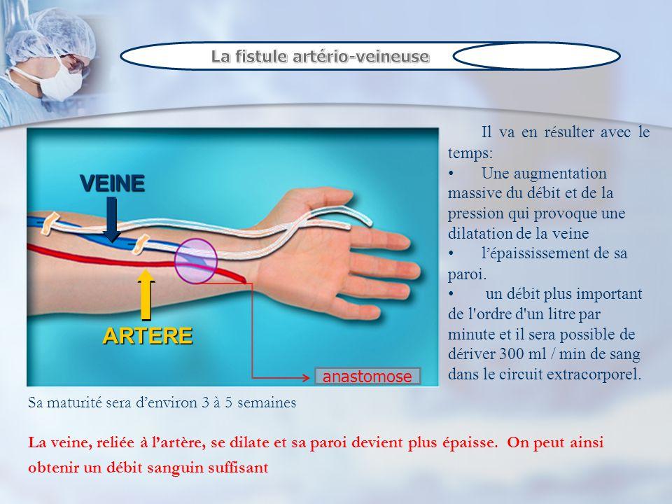 VEINE ARTERE La fistule artério-veineuse