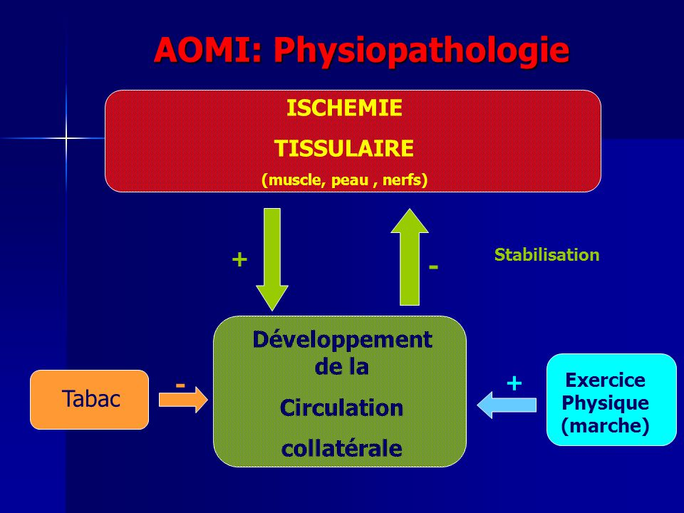 AOMI: Physiopathologie